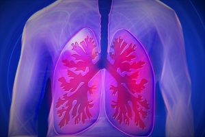 upper body x-ray of lungs
